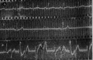 Изменения электрокардиограммы, возникающие у собак после введения настойки аконита вьющегося